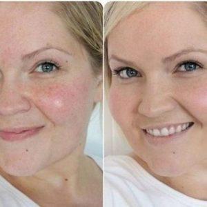 Состояние кожи лица