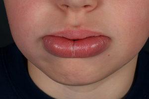 Лечение трещины на губе