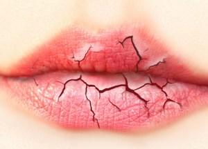Как питаться при трещинах на губах