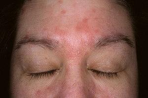 Как лечить себорею на лице