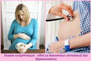 Признаки низкой плацентации при беременности
