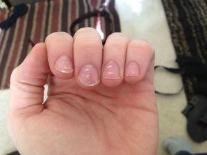 Белые полоски на ногтях - причины