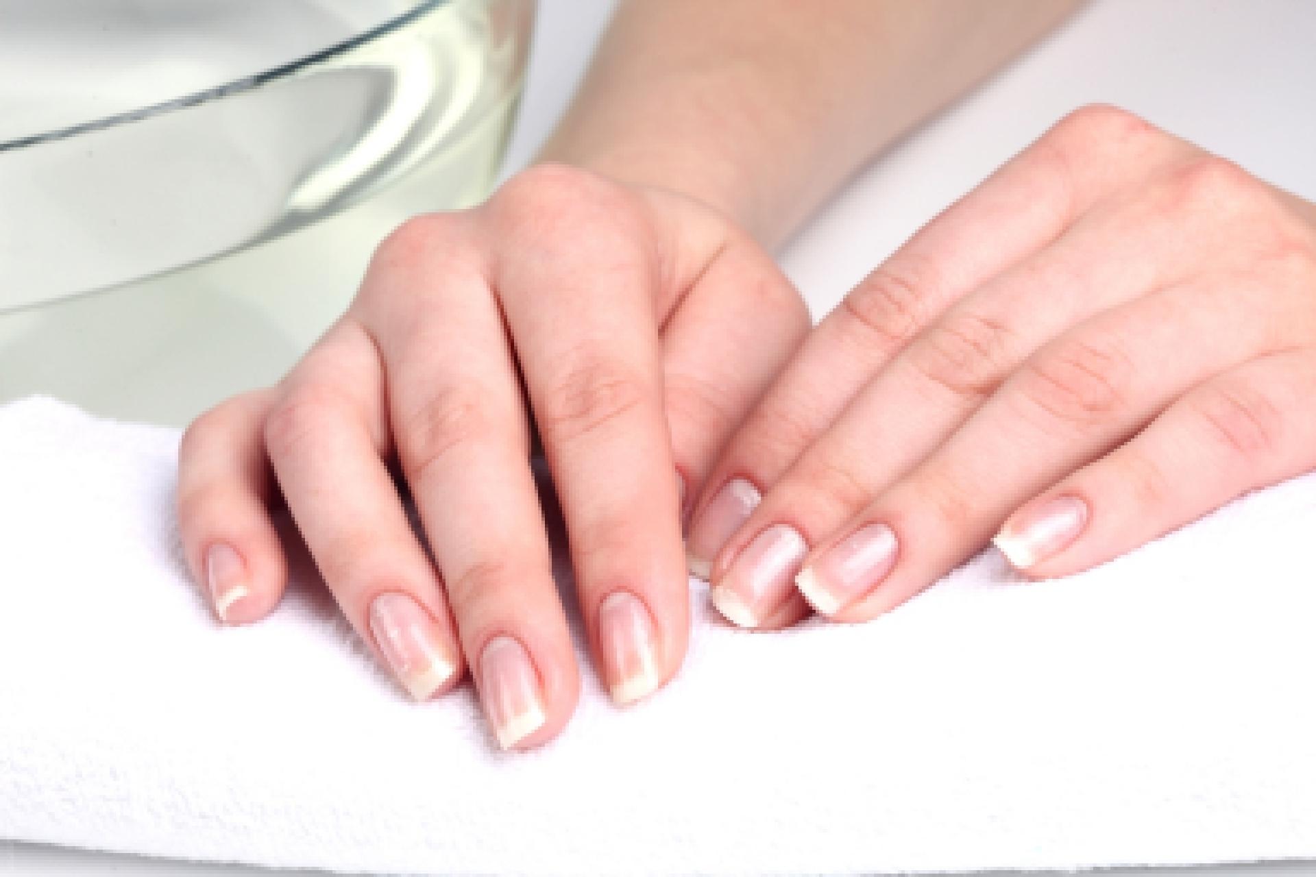Что означают белые точки на ногтях