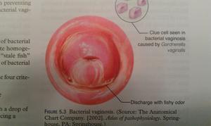 Какими способами лечить вагиноз