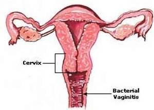 Особенности лечения вагиноза