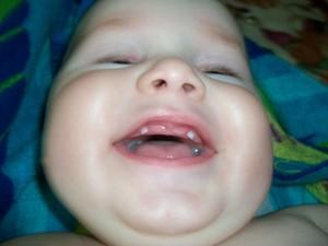 Как ребенок переносит этап появления зубов