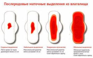 Выделения после родов (лохии): виды