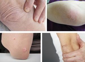 Шелушение кожи на локтях: причины