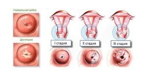 Клиническая картина воспалительного процесса