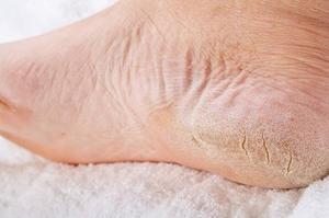 Сухая кожа на ступнях ногах причины