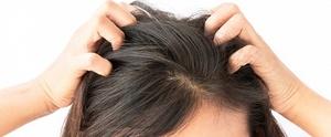 Лечение грибка кожи головы