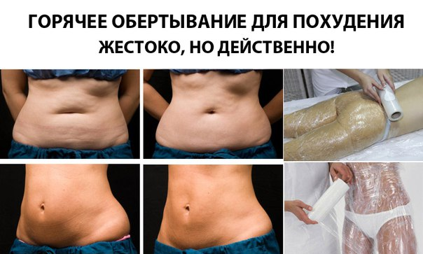 Обертывания Живот Похудеть. Обертывания для похудения живота и боков в домашних условиях..