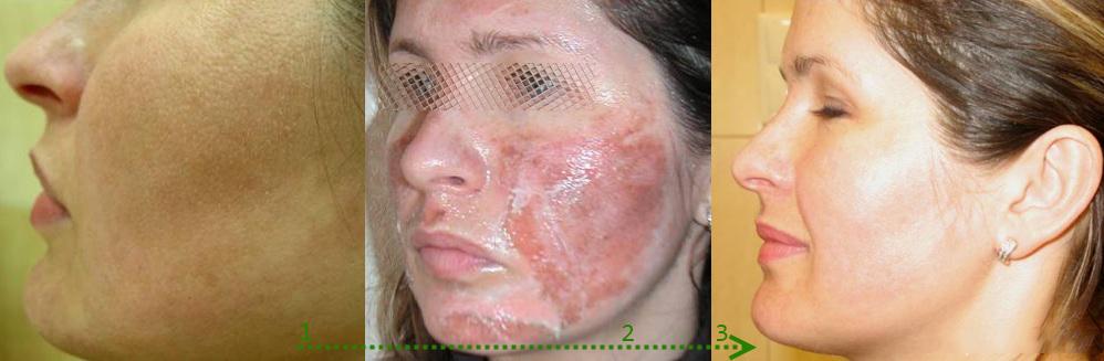 И в каком состоянии находится кожа в первые дни после пилинга (можно ли с таким лицом будет ходить, например, на учебу)?