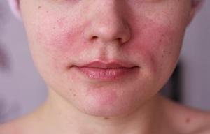 Характеристика раздражения на лице