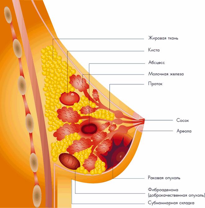 Эти вопросы в первую очередь беспокоят каждую женщину с диагнозом мастопатия.