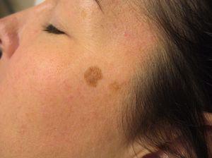 Симптомы тёмных пятен на коже