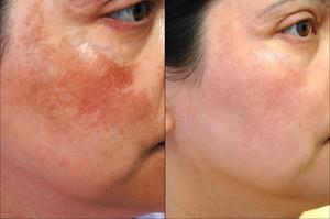 Лечение тёмных пятен на коже