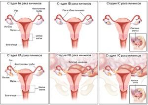 Рак яичников: симптомы