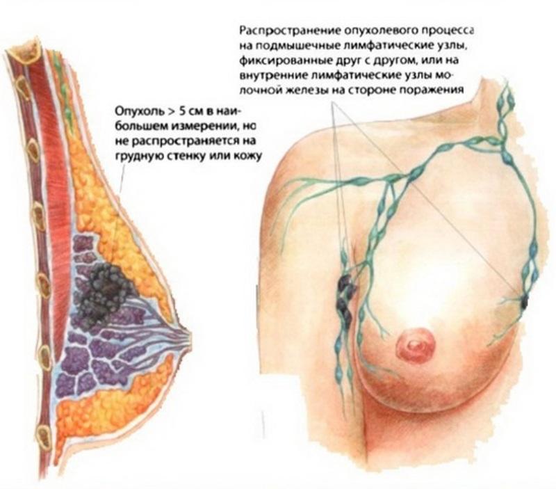 Какие бывают заболевания груди 27