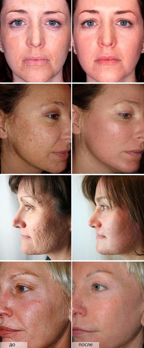 Поверхностный пилинг называют ещё химической чисткой лица.