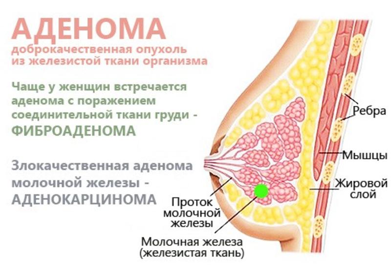 Развитие фиброаденомы у женщин