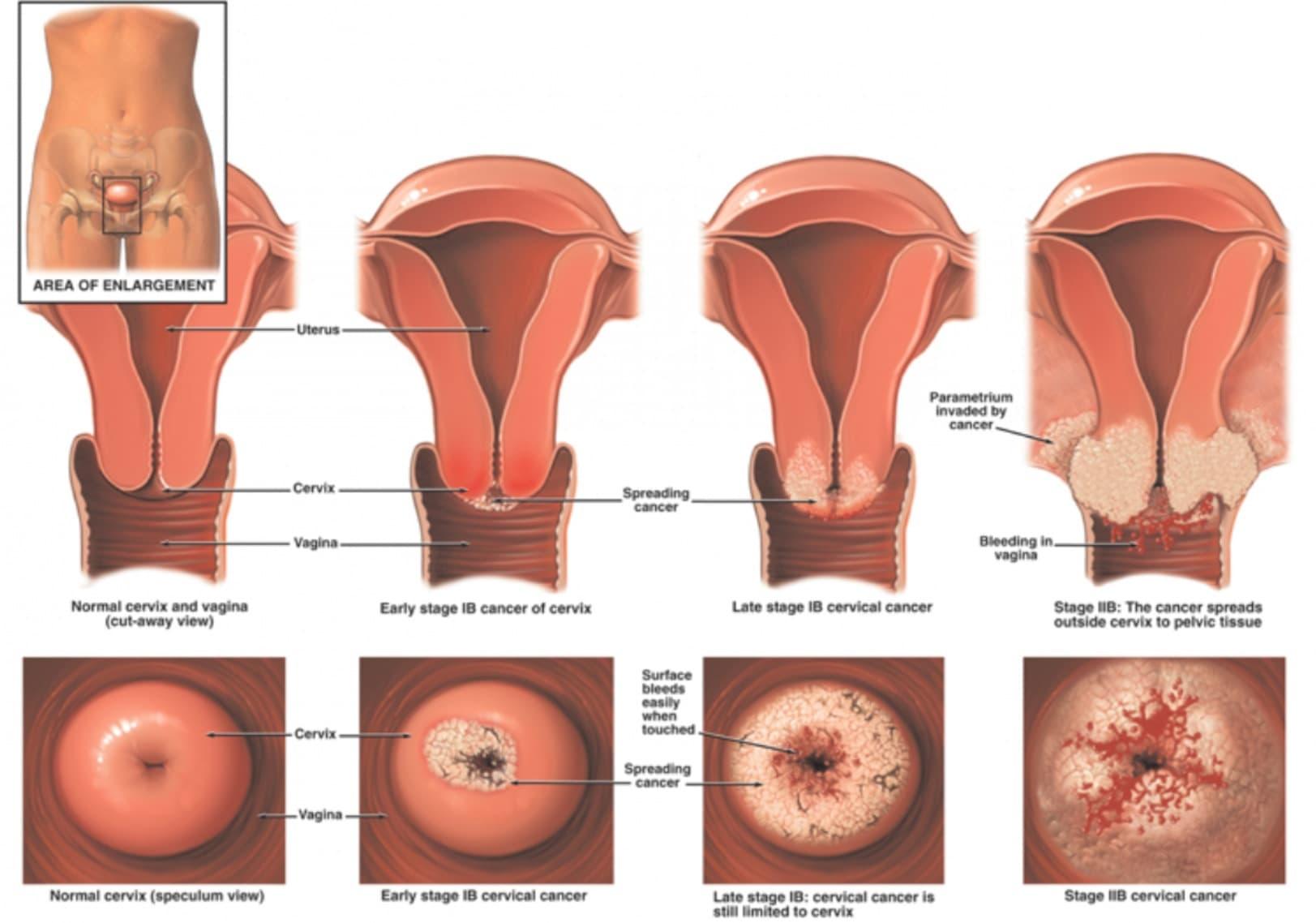 Эрозия шейки матки – лечение медикаментами, народными, аппаратными и хирургическими методами изоражения