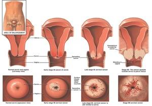 Лечение эрозии шейки матки у нерожавших