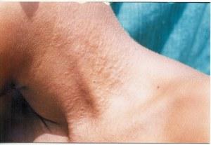 Гусиная кожа: профилактика появления