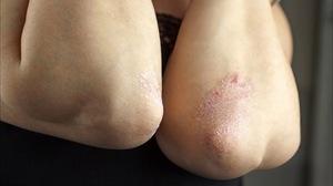 Причины и лечение сухой кожи на локтях в домашних условиях