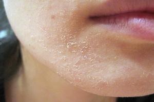 Шелушится кожа на лице