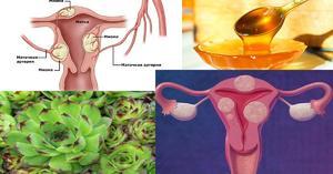 Симптомы кисты яичника у женщин