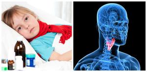 Стеноз гортани у детей: симптомы и лечение