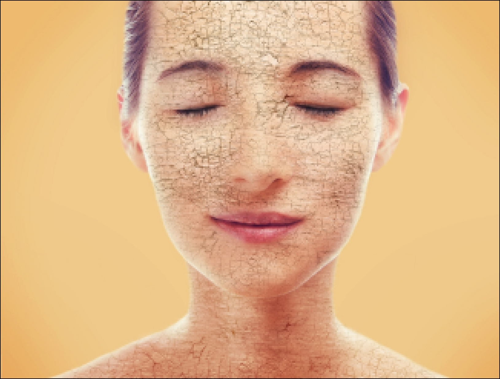Сухая кожа лица: причины, правила ухода, лучшие рецепты