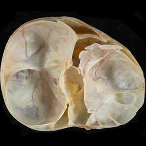 Киста яичника и опухоль яичника это одно и тоже