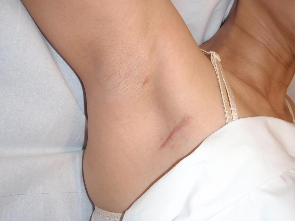 из за чего могут увеличиваться лимфоузлы подмышек