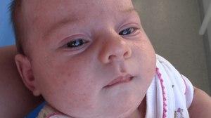 Сыпь на лице у новорожденного: диагностика
