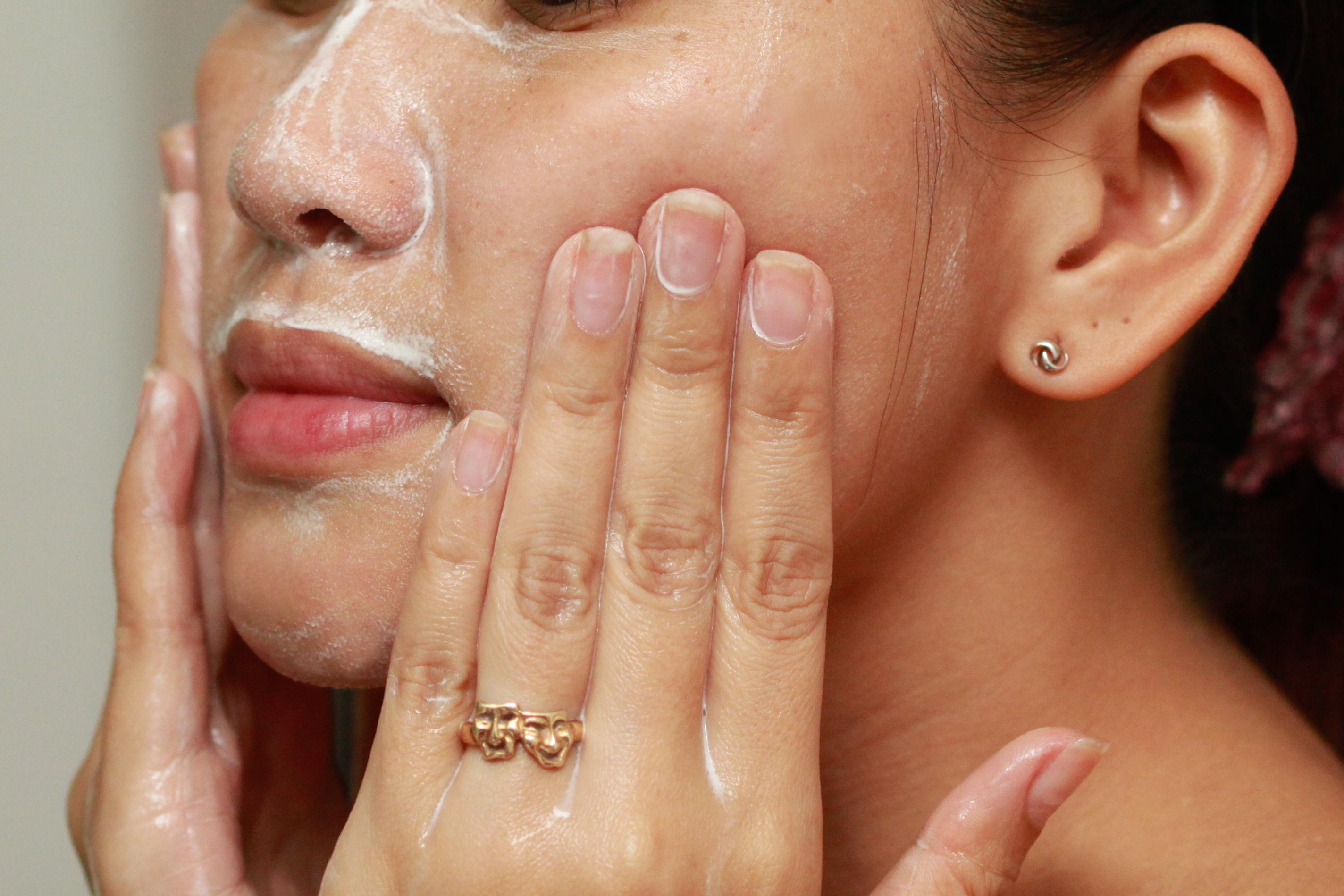 Помогает ли перекись водорода от прыщей на лице