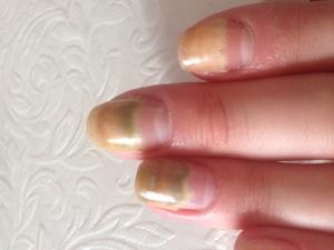 Общие причины паталоги ногтей