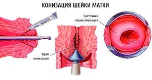 Средства лечения эрозии шейки матки