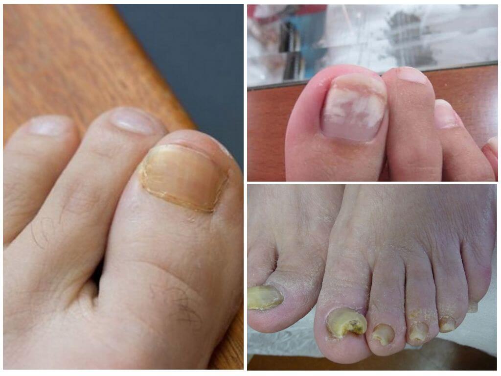 Грибок Ногтей Ног И Его Лечение