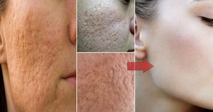 Как бороться с жирной коже